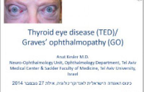 מחלת עיניים תירואידלית חידושים באבחון וטיפול